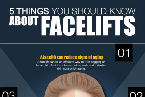 5 Things You Should Know about Facelifts [Infographic]