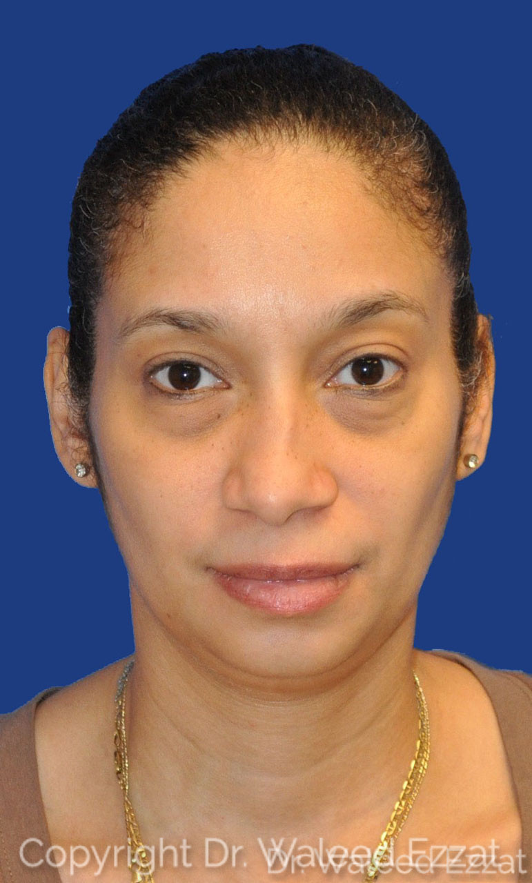 Rhinoplasty Patient Photo - Case 1 - before view-