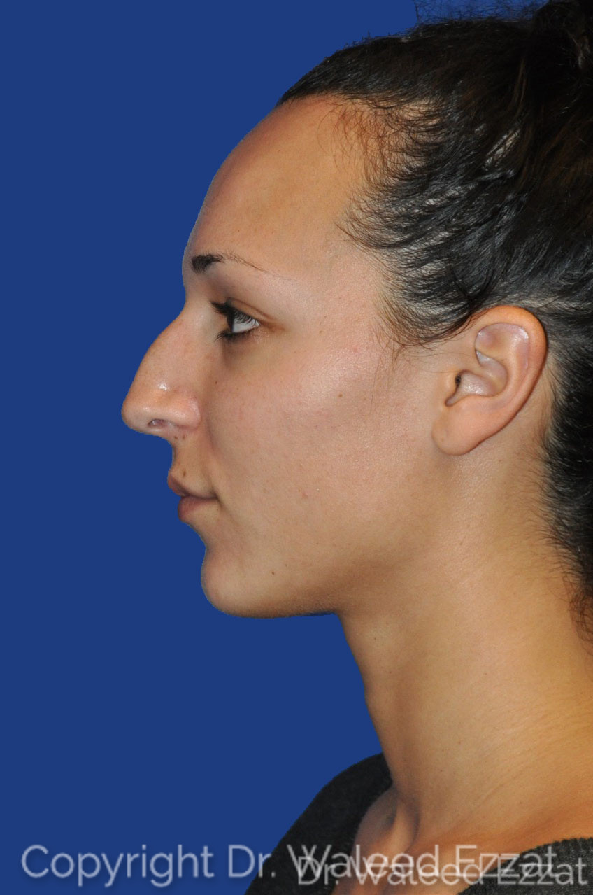 Rhinoplasty Patient Photo - Case 2 - before view-2