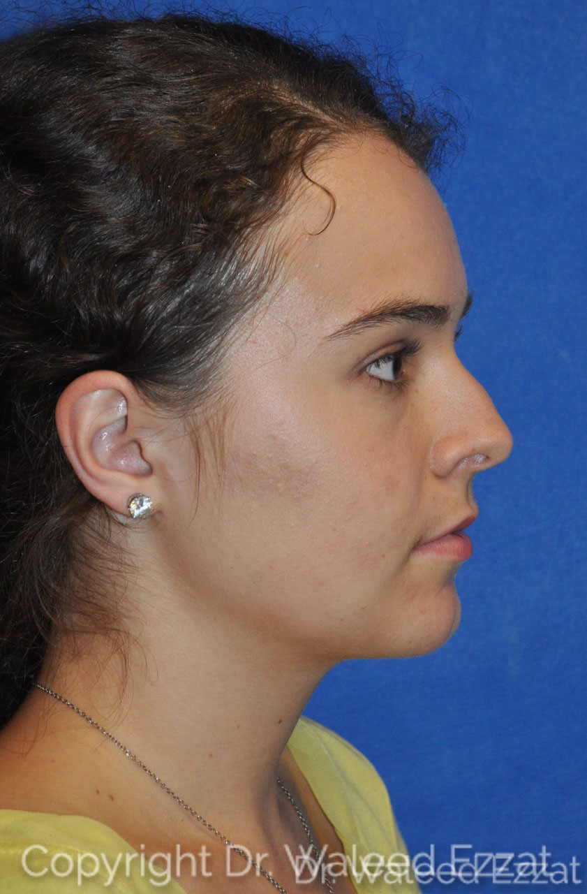 Rhinoplasty Patient Photo - Case 3 - before view-1