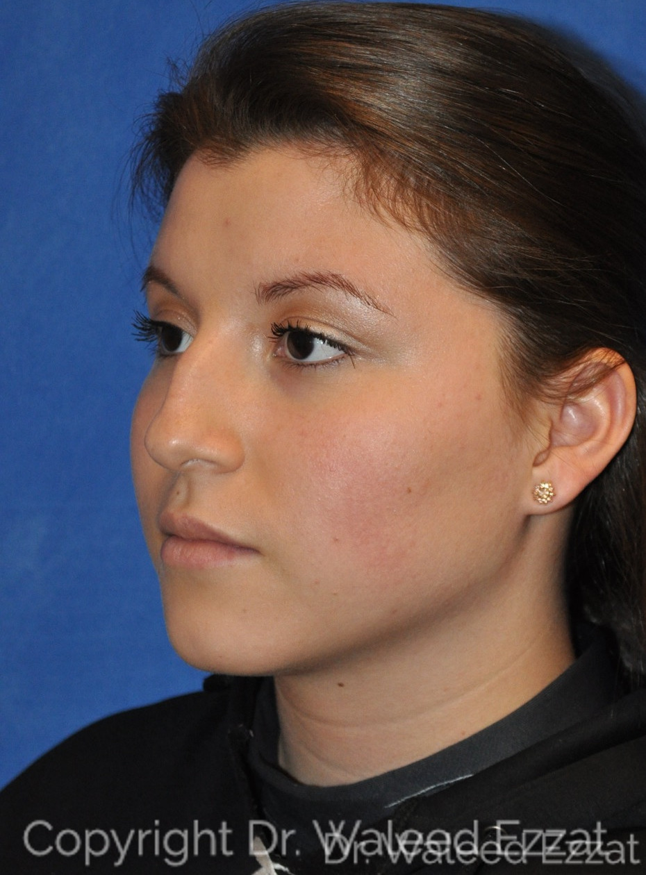 Rhinoplasty Patient Photo - Case 5 - before view-