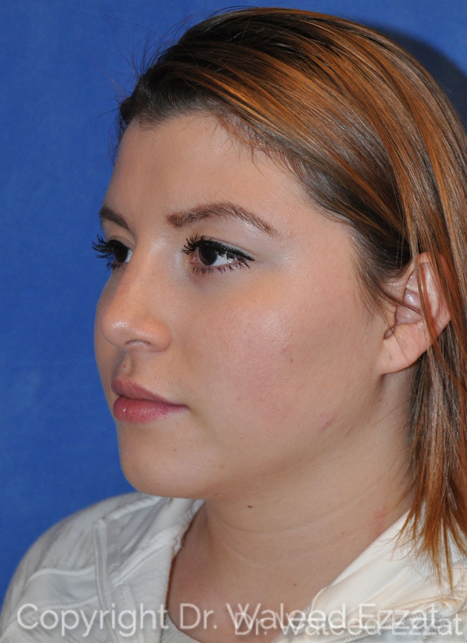 Rhinoplasty Patient Photo - Case 5 - after view