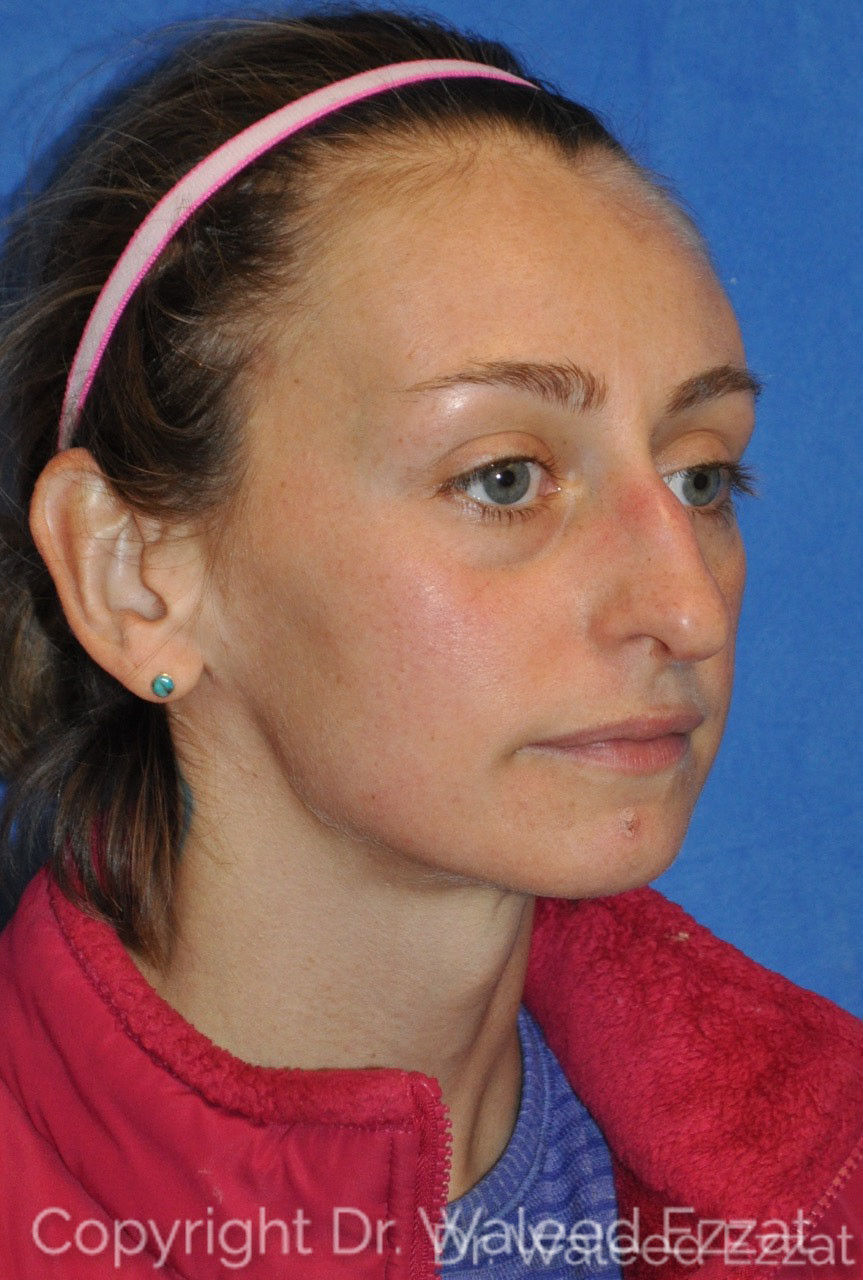 Rhinoplasty Patient Photo - Case 6 - before view-