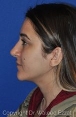 Rhinoplasty - Case 11 - After
