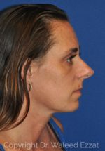 Rhinoplasty - Case 13 - Before