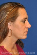 Rhinoplasty - Case 13 - After