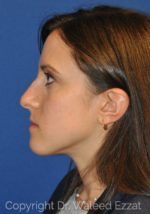 Revision Rhinoplasty - Case 101 - Before