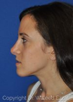 Revision Rhinoplasty - Case 101 - After