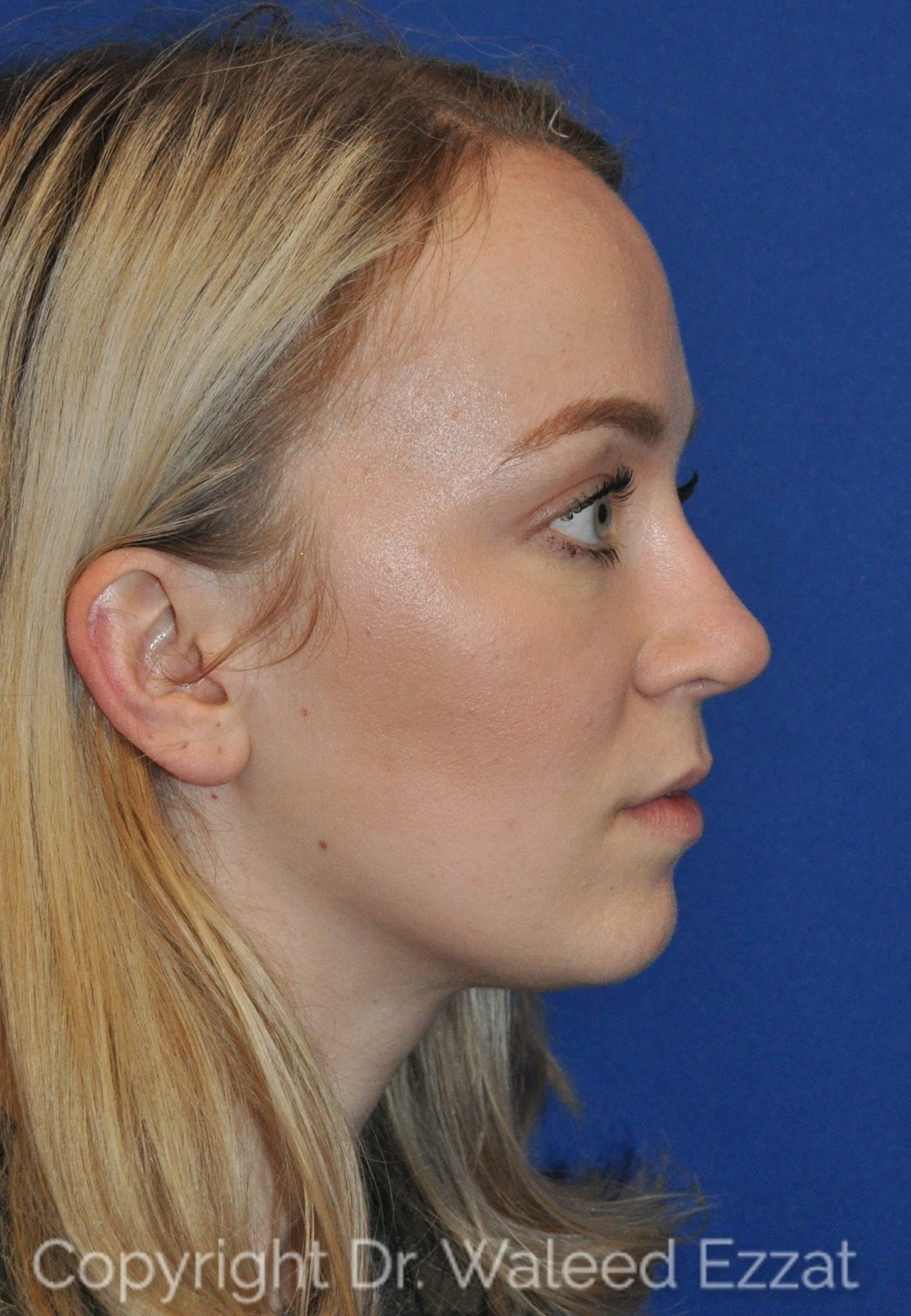 Revision Rhinoplasty Patient Photo - Case 103 - after view