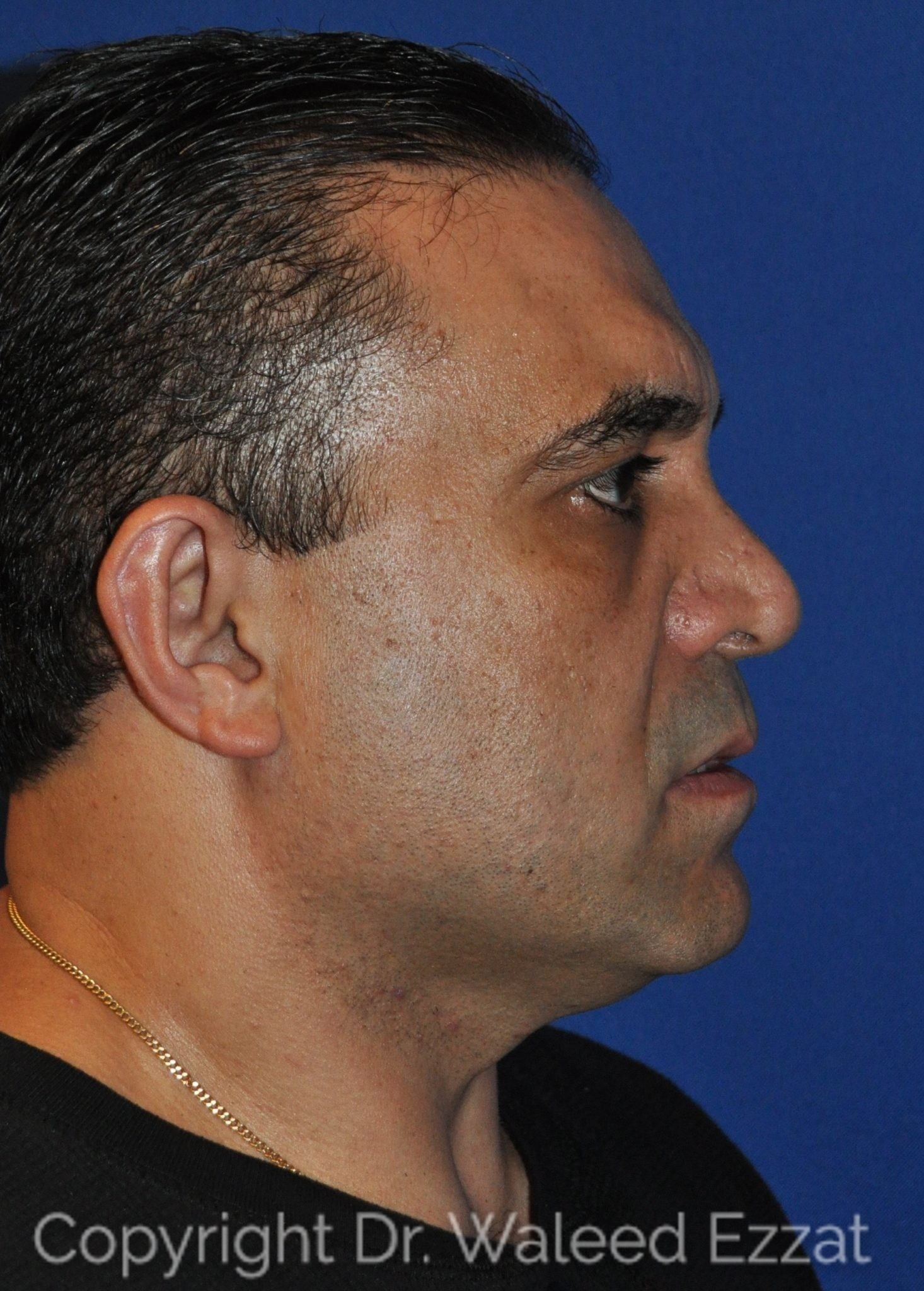 Revision Rhinoplasty Patient Photo - Case 106 - before view-