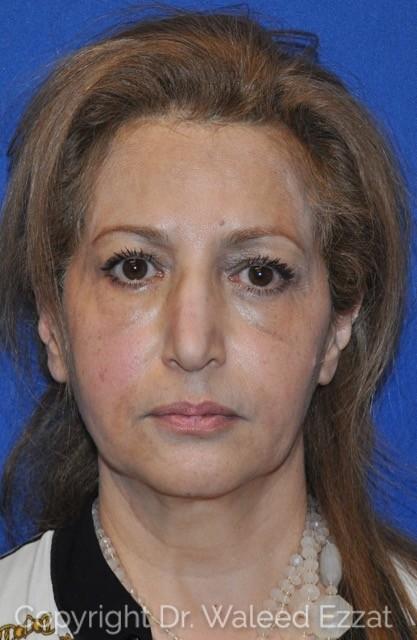 Cheek Lift Patient Photo - Case 1 - before view-
