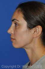 Rhinoplasty - Case 15 - After