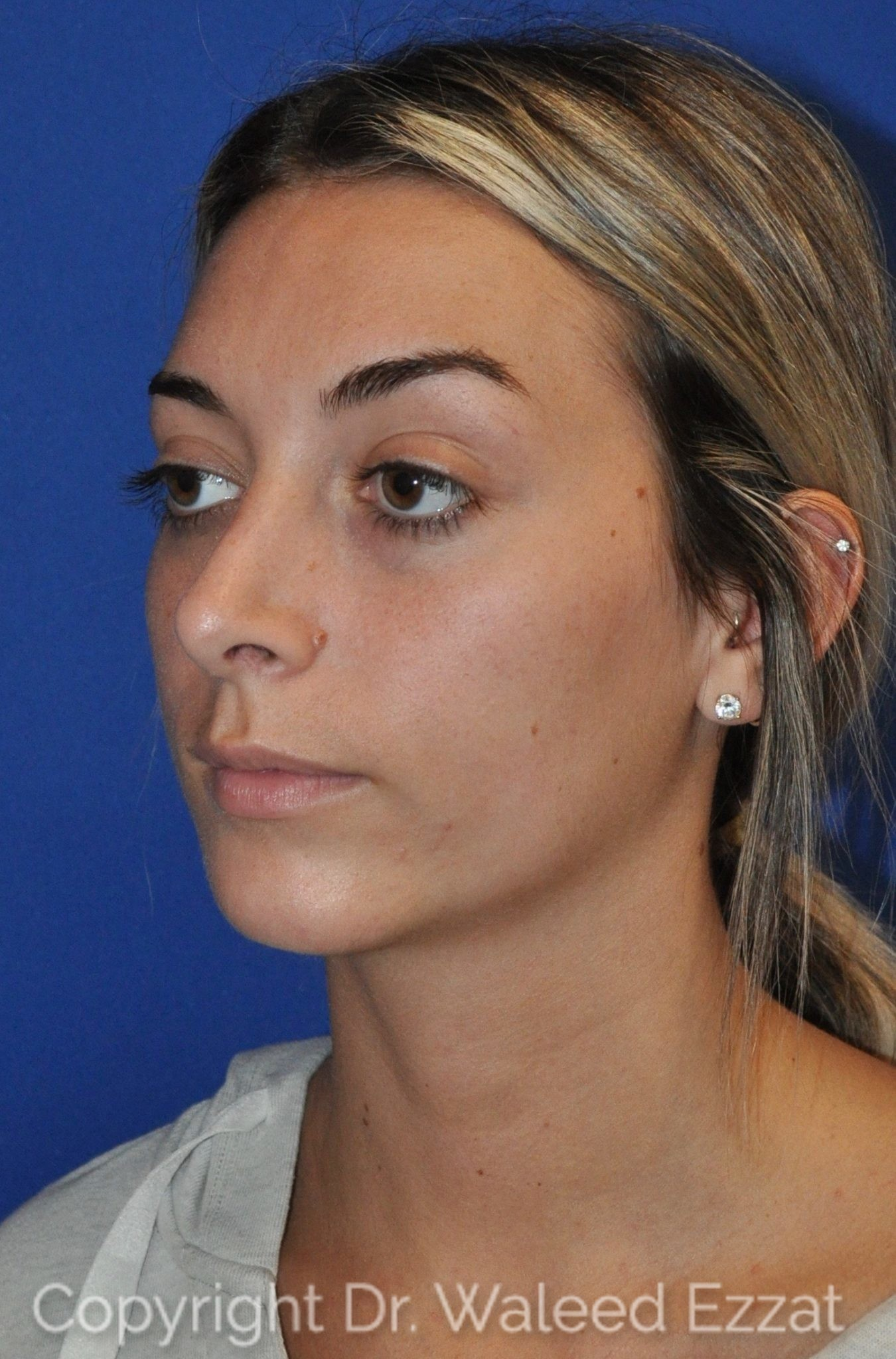 Rhinoplasty Patient Photo - Case 12 - after view-1