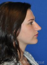 Rhinoplasty - Case 17 - Before