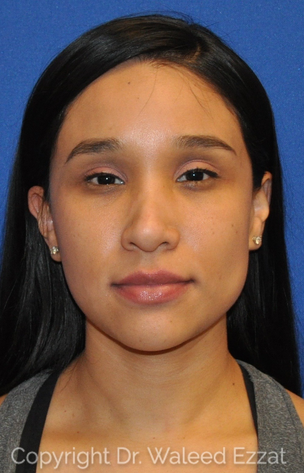 Revision Rhinoplasty Patient Photo - Case 108 - before view-2
