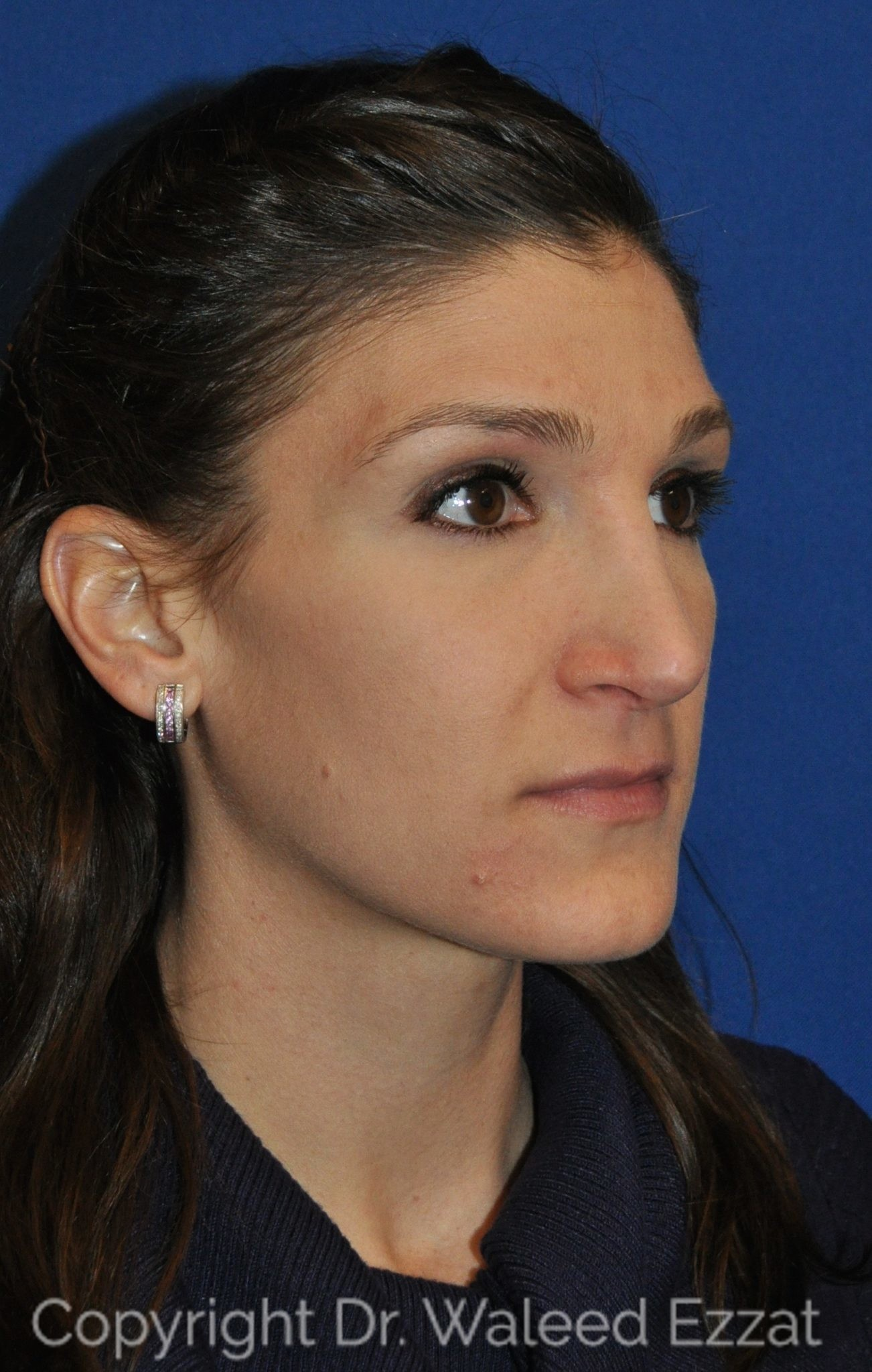 Revision Rhinoplasty Patient Photo - Case 109 - after view-1