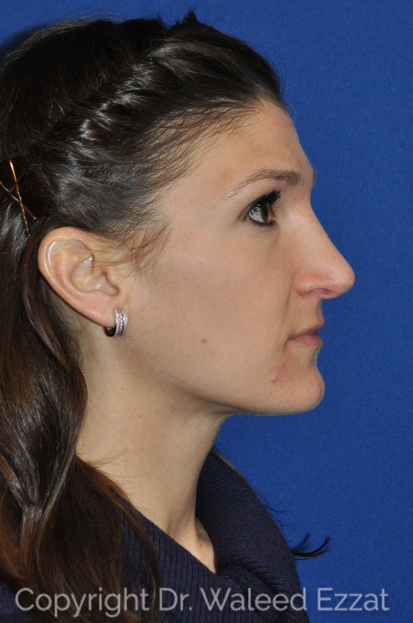 Revision Rhinoplasty Patient Photo - Case 109 - after view