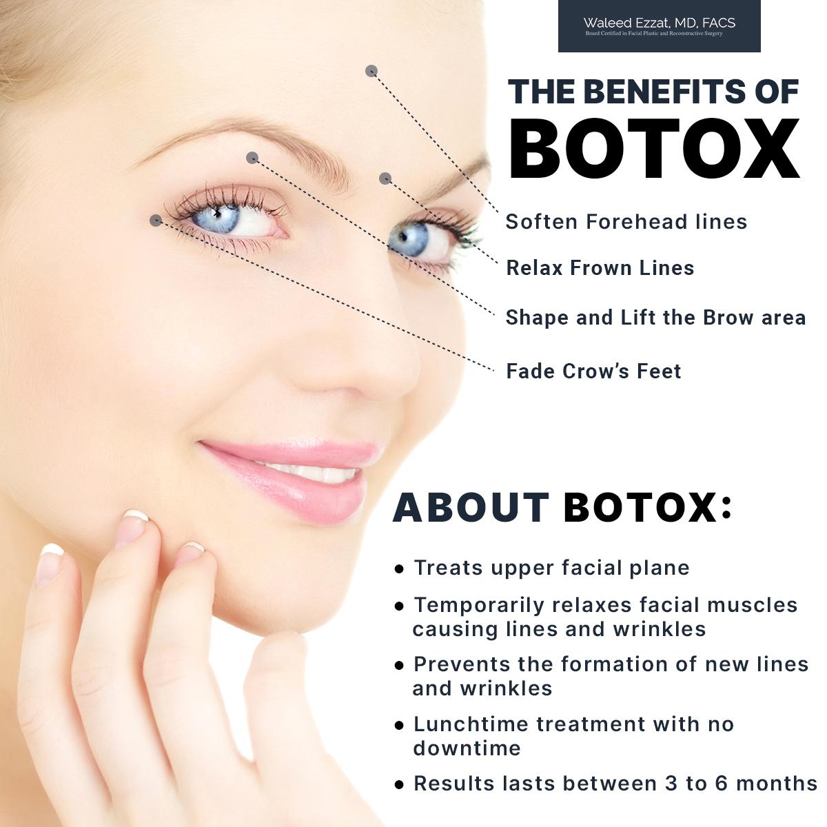 The Benefits of Botox [Infographic]
