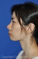 Asian Rhinoplasty - Case 951 - Before