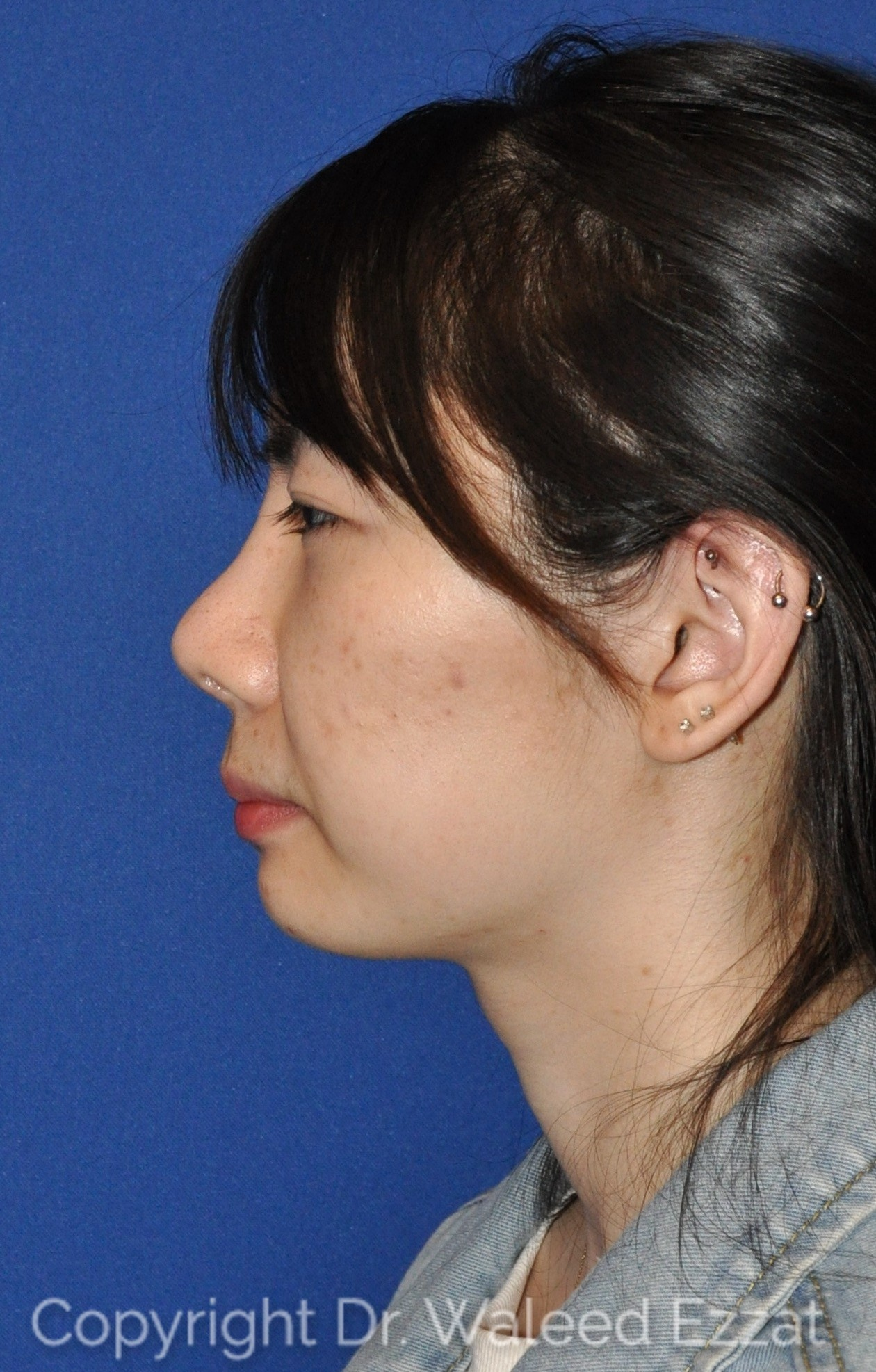 Revision Rhinoplasty Patient Photo - Case 951 - after view
