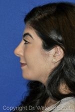 Rhinoplasty - Case 20 - After