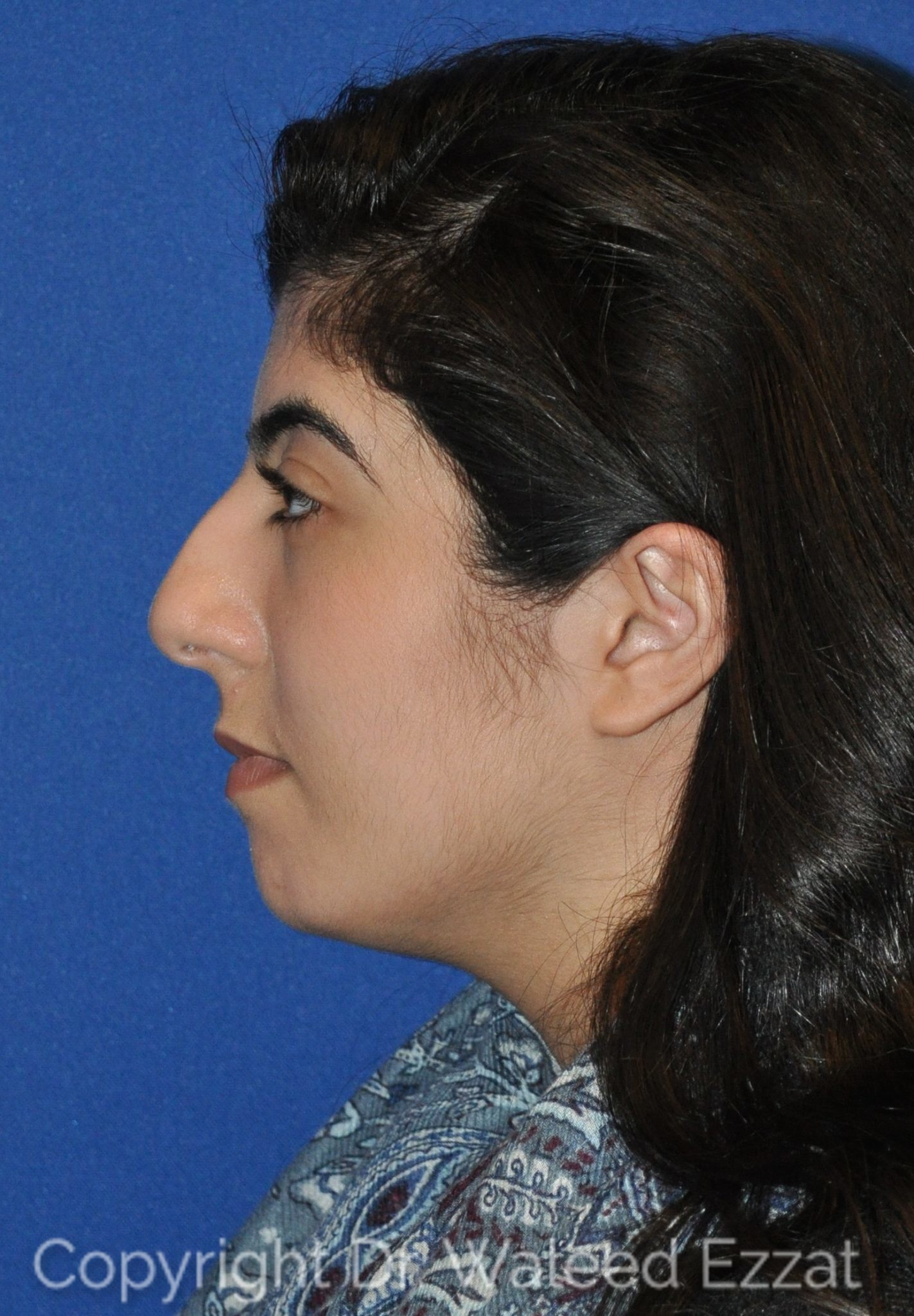 Rhinoplasty Patient Photo - Case 20 - before view-