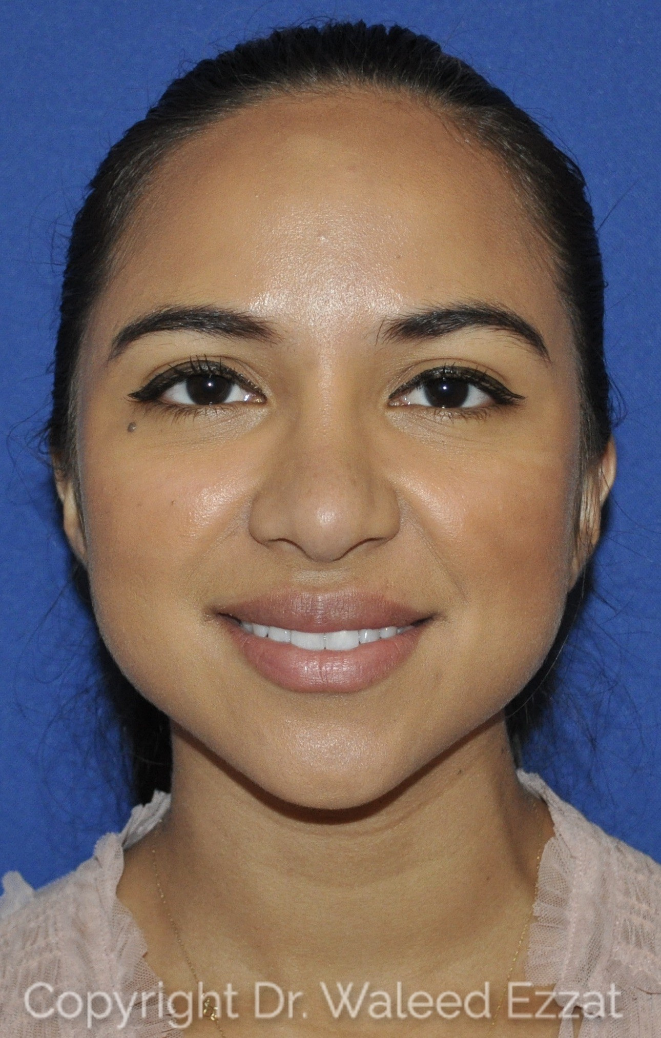 Rhinoplasty Patient Photo - Case 21 - after view-2