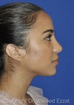 Rhinoplasty - Case 21 - After