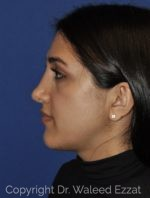 Reconstructive Rhinoplasty - Case 114 - Before