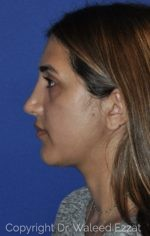 Reconstructive Rhinoplasty - Case 114 - After