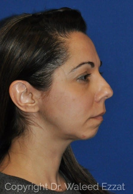 Rhinoplasty Patient Photo - Case 44-3 - before view-2