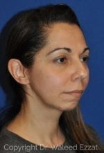 Cheek Lift - Case 44-3 - Before