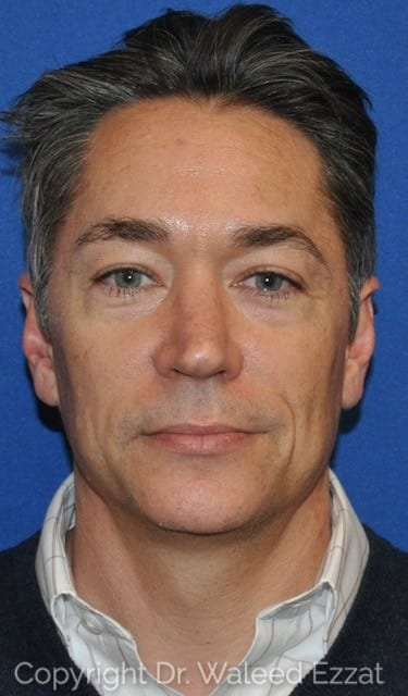 Blepharoplasty Patient Photo - Case 4715 - before view-