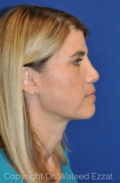 Revision Rhinoplasty Patient Photo - Case 114 - after view-1